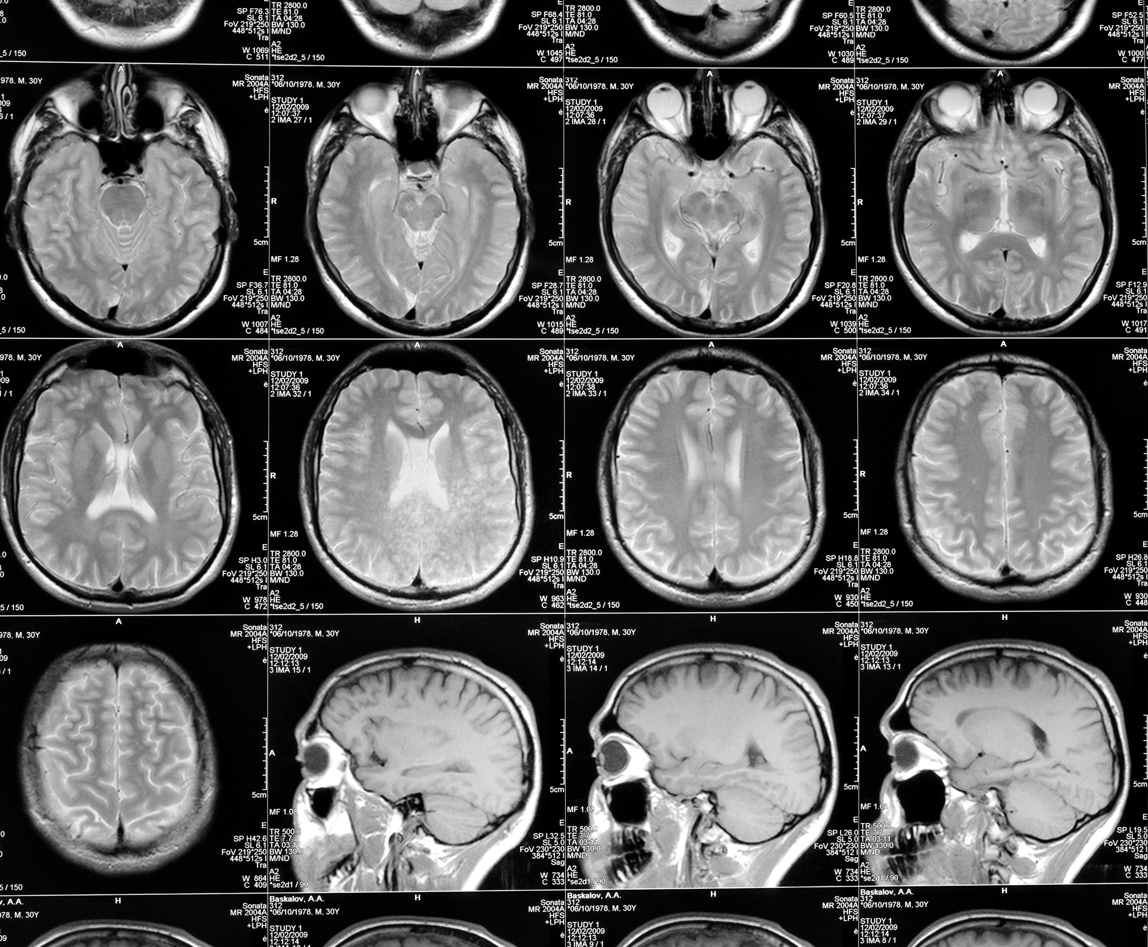 MR cerebrum